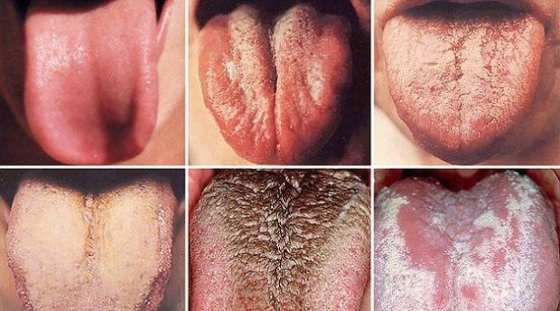 take-a-closer-look-the-color-of-your-tongue-can-reveal-if-you-have-cancer
